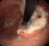 рак на стомаха при гастроскопия