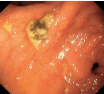гастроскопията показва язва на стомаха