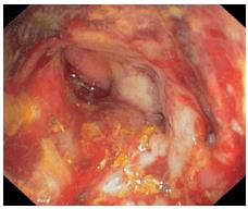 Радиационен колит и кървене с анемия