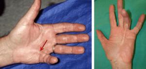 симптоми на цироза - контрактура на Дюпюитрен