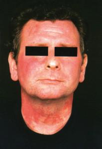 зачервяване на лицето при карциноид-флъш