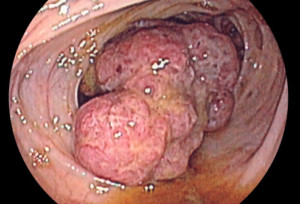 Рак на дебелото черво - снимка от колоноскопия
