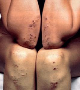херпетиформен дерматит при глутенова ентеропатия