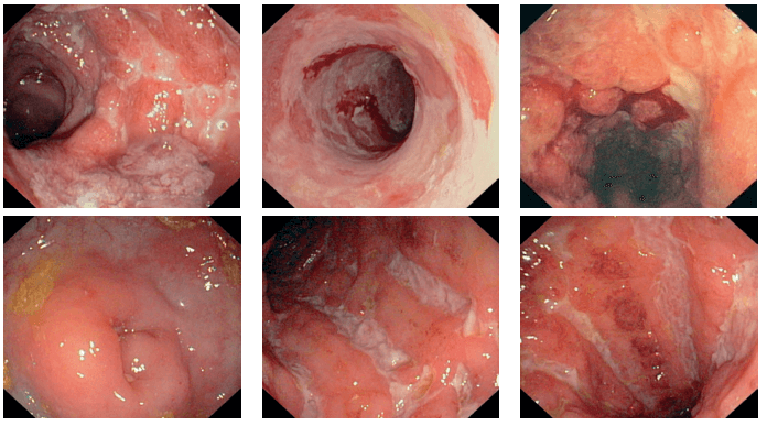 Възпалителни заболявания - улцерозен колит и болест на крон